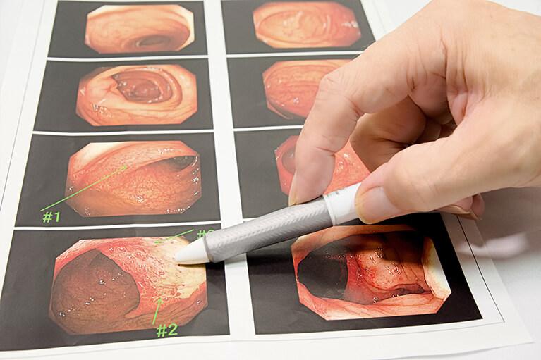 内視鏡検査(胃・大腸)