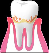歯と歯茎のすき間 1~3mm