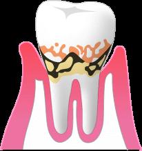 歯と歯茎のすき間3~5mm